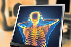 Esplorazione umana della radiografia Immagine Stock
