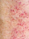 Esponga al sole la reazione avversa, l'allergia, eruzione rossa sulle gambe Primo piano del dettaglio Fotografia Stock