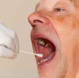 Esponja de la DNA de la saliva tomada de hombre mayor Fotos de archivo