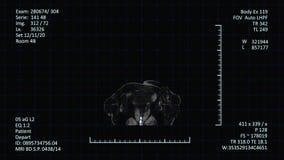 Esposizione medica dell'analizzatore di RMI, immagini del CAT o di CT stock footage