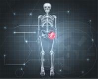Esqueleto con dolor común de cadera Fotografía de archivo libre de regalías
