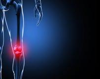 esqueleto da dor do joelho da ilustração 3d Fotografia de Stock Royalty Free