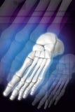 Esqueleto del pie Imagen de archivo libre de regalías