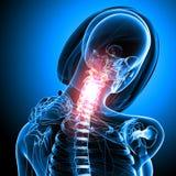 Esqueleto femenino con dolor en cuello Foto de archivo libre de regalías