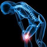 Esqueleto fêmea com dor do joelho Fotografia de Stock Royalty Free