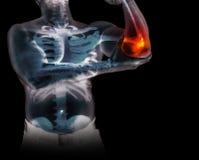 Esqueleto humano bajo radiografías aisladas en fondo negro Fotos de archivo