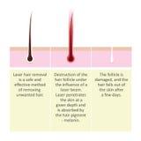 Esquema da remoção do cabelo do laser Descrição do procedimento da cosmetologia Fotografia de Stock Royalty Free