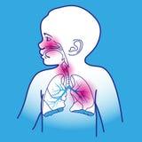 Esquema respiratorio del niño Foto de archivo libre de regalías
