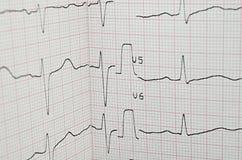 Essai d'électrocardiogramme Image stock