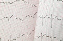 Essai d'électrocardiogramme Photos stock