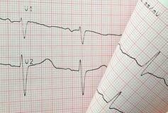 Essai d'électrocardiogramme Photographie stock