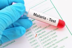 Essai de malaria image libre de droits