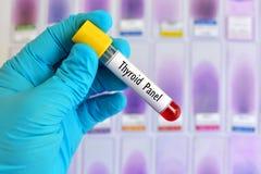 Essai de panneau thyroïde Image libre de droits