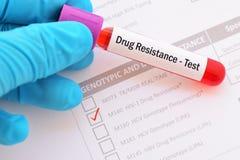 Essai de résistance au médicament d'HIV image stock