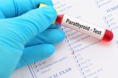 Essai parathyroïde d'hormone images stock
