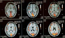 essere umano attivo del cervello Immagini Stock