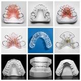 Essix-Halter umgeben durch orthodontische Geräte und Studienmodelle Lizenzfreie Stockbilder