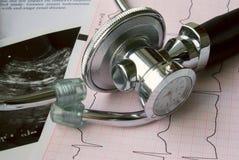 Estetoscopio con el reloj y el electrocardiograma Fotografía de archivo