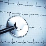 Estetoscopio en EKG Imágenes de archivo libres de regalías