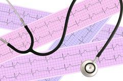 Estetoscopio médico y análisis del corazón, gráfico del electrocardiograma imagenes de archivo