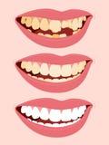 Estágios progressivos de cáries da deterioração de dente Imagem de Stock Royalty Free