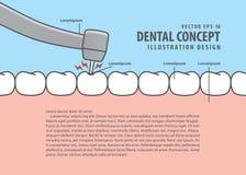 Estilo de la historieta de la carie del tratamiento del diente de decaimiento de la disposición para la información o stock de ilustración