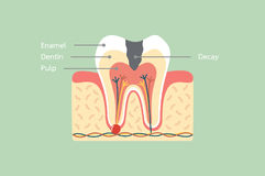 Estructura de la anatomía del diente de decaimiento incluyendo el hueso y goma con palabra del detalle ilustración del vector