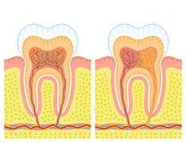 Estrutura interna do dente Imagem de Stock