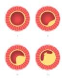 Etapas de la ateroesclerosis en arteria Imagen de archivo libre de regalías