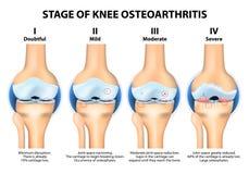Etapas de la osteoartritis de la rodilla (OA) Fotografía de archivo libre de regalías