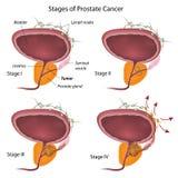 Etapas del cáncer de próstata Imagen de archivo libre de regalías