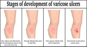 Etapas del desarrollo de úlceras varicosas Fotos de archivo