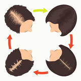 Etapas femeninas de la pérdida de pelo del modelo Fotografía de archivo libre de regalías
