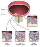 Etapper av blåsacancer vektor illustrationer
