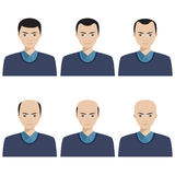 Etapper för hårförlust och typer av flintskallighet vektor illustrationer