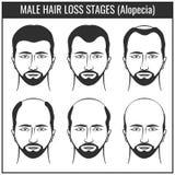 Etapper för hårförlust och typer av flintskallighet Diagram för vektor för manhårproblem royaltyfri illustrationer
