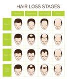 Etapper och typer för hårförlust för män royaltyfri illustrationer