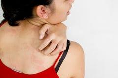 Ethische Rückseite der jungen Frau mit juckender Haut Lizenzfreie Stockfotos