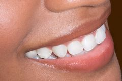 Ethnic black African-American woman teeth closeup. Close up of mouth lips and teeth of dark skinned Afro-American female Stock Images