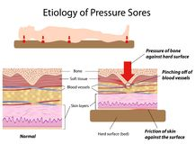 Etiology of pressure sores Stock Image