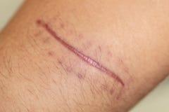 Ett ärr av det fintrådiga silkespappret som byter ut normal hud efter en skada på hud royaltyfri fotografi