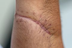 Ett ärr av det fintrådiga silkespappret som byter ut normal hud efter en skada på hud arkivfoton