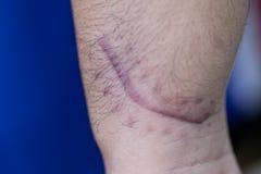 Ett ärr av det fintrådiga silkespappret som byter ut normal hud efter en skada på hud arkivbild