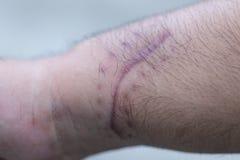 Ett ärr av det fintrådiga silkespappret som byter ut normal hud efter en skada på hud royaltyfri foto