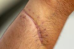 Ett ärr av det fintrådiga silkespappret som byter ut normal hud efter en skada på hud arkivbilder