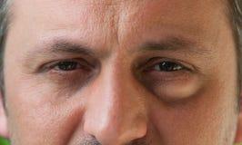 Ett öga med bindhinneinflammation arkivfoton