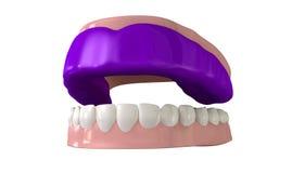 Gummivakt som är inpassad på öppna falska tänder Arkivfoton