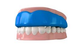 Gummivakt som är inpassad på stängda falska tänder Arkivfoton