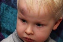 Ett stort blåmärke på pannan av lite pojken arkivbilder