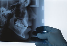 Doctor evaluating an X-ray Royalty Free Stock Images